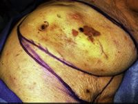 Figure 6: Photo of a radiation induced angiosarcoma of the breast.
