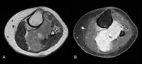 Figure 1. Magnetic resonance imaging of a primary clear cell sarcoma