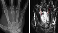 FIGURE 3A– AP radiograph of the hand demonstrates a permeative, lytic lesion of the metacarpal of the middle finger.
