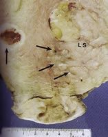 Figure 1: A uterus has been cut showing a large, soft leiomyosarcoma...