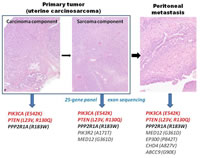 Figure 2: A representative case in which the carcinoma component and sarcoma component...
