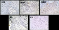 Figure 3: Immunohistologic staining of rat chondrosarcoma immune infiltrate...