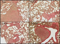 Report Figure 3: Lung metastases in control group animals were found to be particularly prominent when compared to PEDF and peptide treated animals.