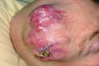Figure 1: Radiation induced sarcoma after prophylactic cranial irradiation