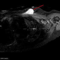 Figure 2: MRI of a woman diagnosed with a fusocellular sarcoma