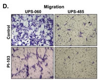Figure 2D1: AKT/mTOR signaling blockade induces marked anti-UPS/MFH effects